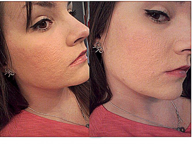 Updated! Dermarolling Great Results, Pictures - Page 3 ...