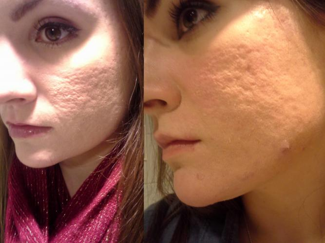 Updated Dermarolling Great Results Pictures Scar