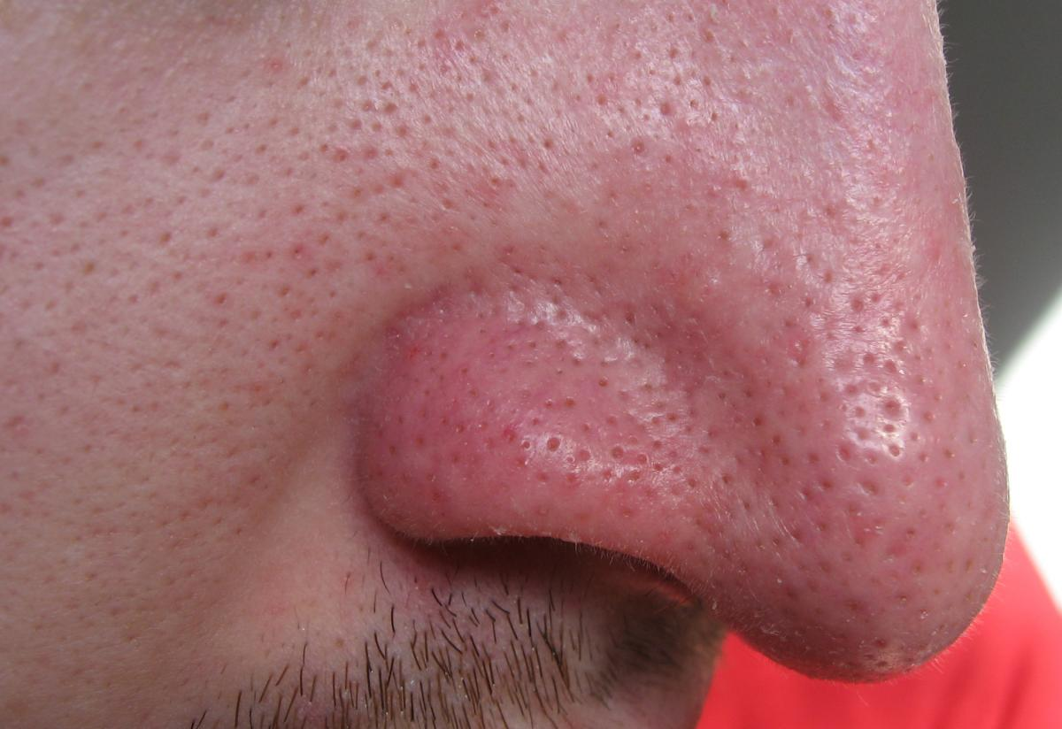 Adult acne nose right!
