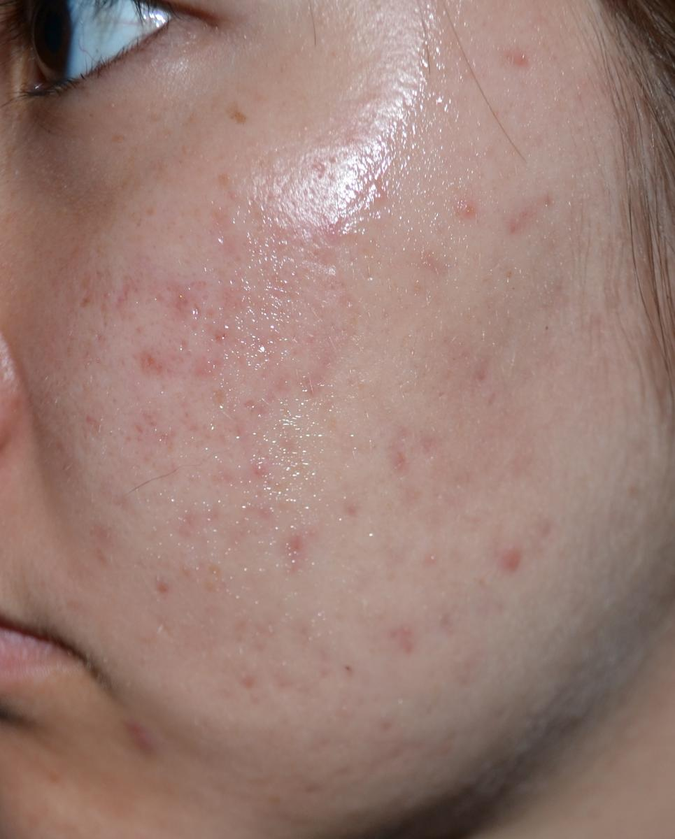 how to get rid of red marks face acne scars