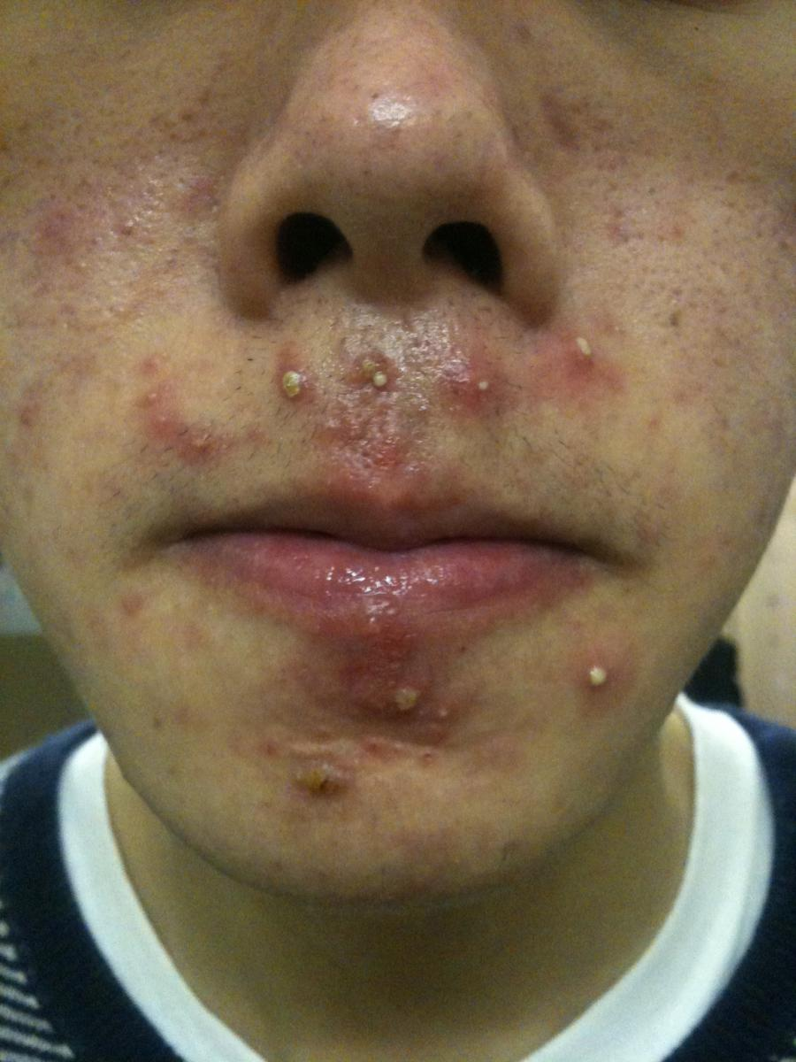 Can My Cystic Acne Go Away In 10 Days? - General acne