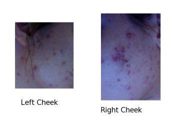 acne-july-16-2012.jpg