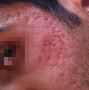 Best Treatment For Acne And Chicken Pox Scars? (Images ...
