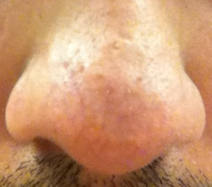 Treatment For Bumps Scars On Nose Images Please Help Hypertrophic Raised Scars Acne Org