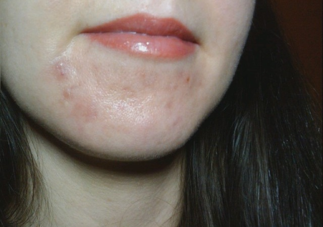 do i have cystic acne pic included   adult acne   acne