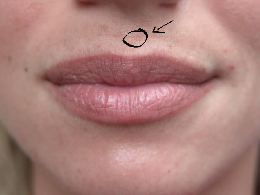 weird scar red mark lump on my upper lip hyperpigmentation red dark marks community. Black Bedroom Furniture Sets. Home Design Ideas