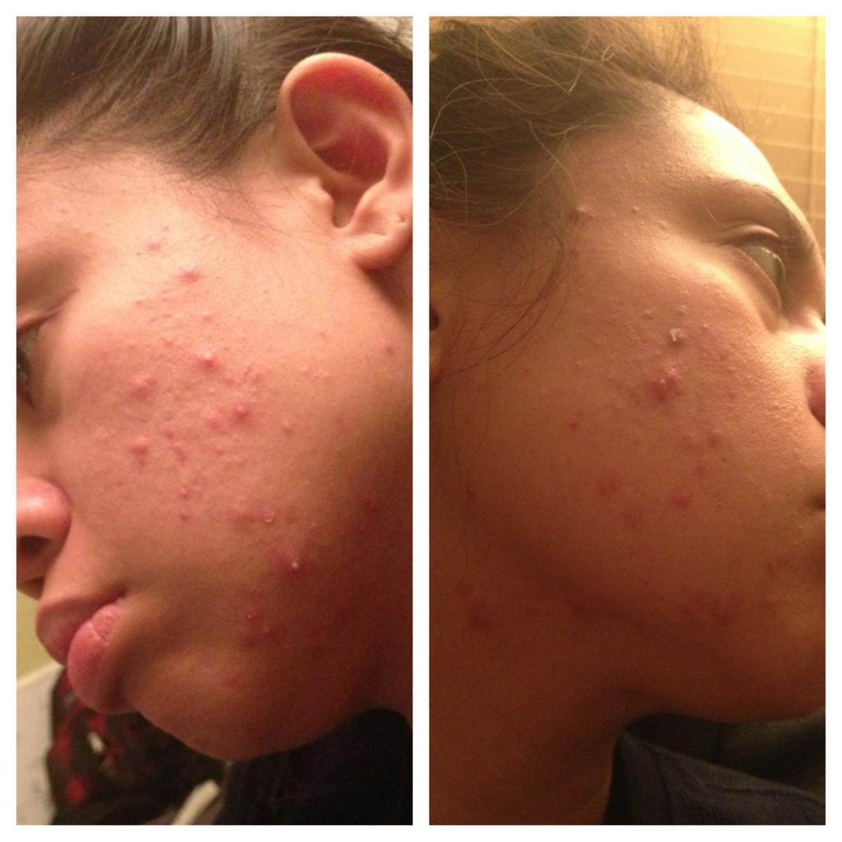 acne adult onset