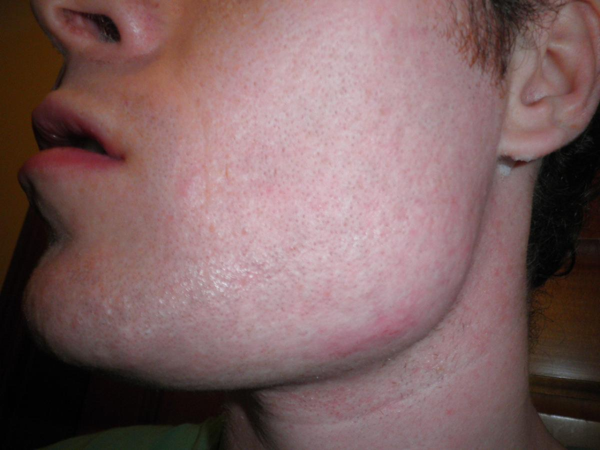 facial scars red
