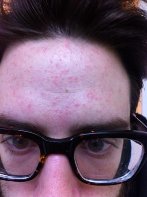 foreheadexplosion.jpg