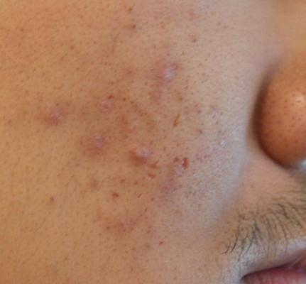 how to not leave scar after chickenpox