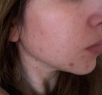 acne scars without flash.jpg