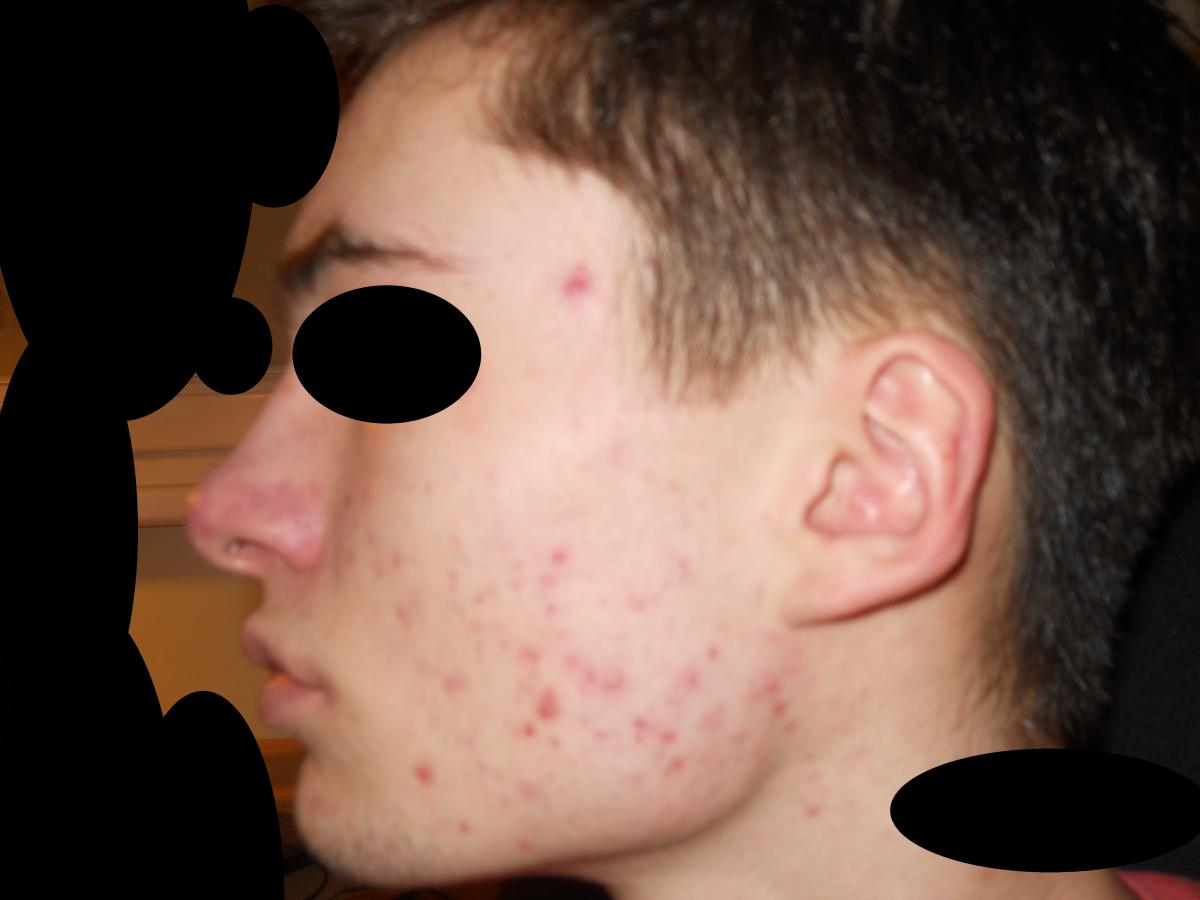 Before And After Accutane Accutane Isotretinoin Logs