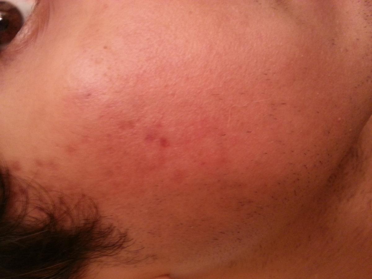 acné au front que faire