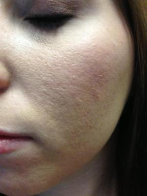 Will Retin A Micro Help These Scars Scar Treatments Acne Org