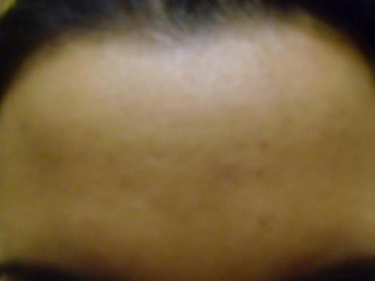 post-200657-0-05521100-1364462516_thumb.