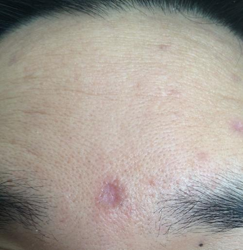 Subcision For These Chicken Pox Scars? - Scar treatments ...