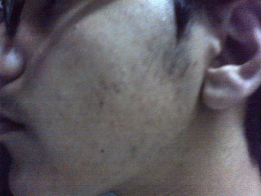 post-201396-0-97169700-1361276055_thumb.