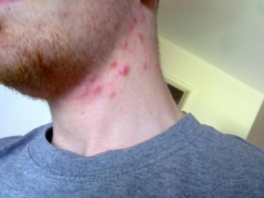 How to Treat Acne on the Neck - Facing Acne
