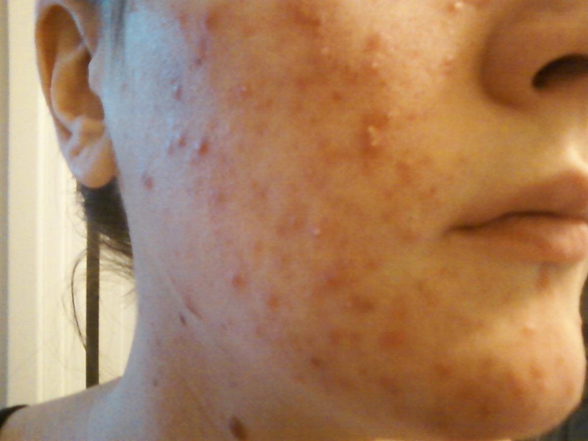 Treating Rosacea Homeopathy Xl