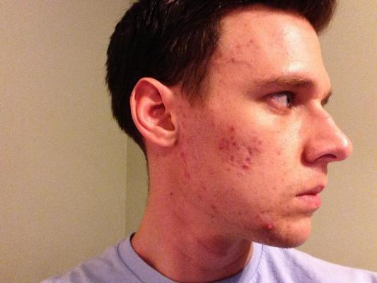 Acne After Second Course Of Accutane