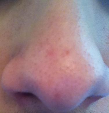 nose.png