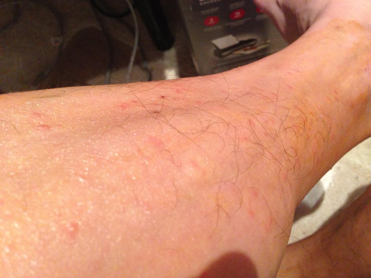 Red Rashes And Itchy Bumps Prescription Acne Medications