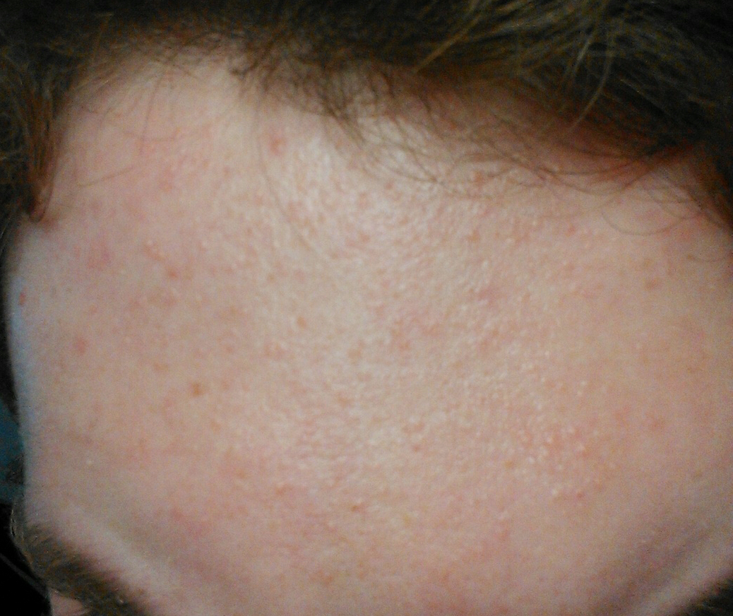 Small Colorless Bumps All Over Forehead