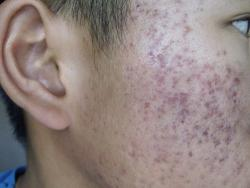 hyperpigmentation acne scars