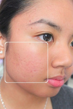 Quick reduction of pimples