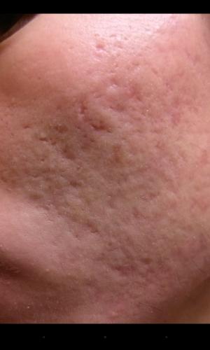 Pin on dermatolog#  Closed Vs Open Comedones