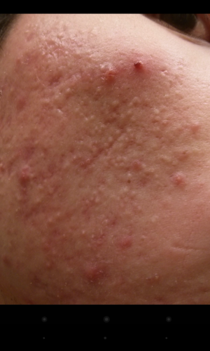 Solar Comedones vs Rosacea; Do you know the difference ...  Closed Vs Open Comedones