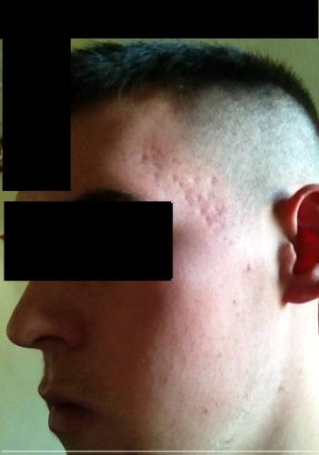 acne after finishing steroids