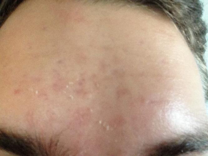 acné sans traitement xl