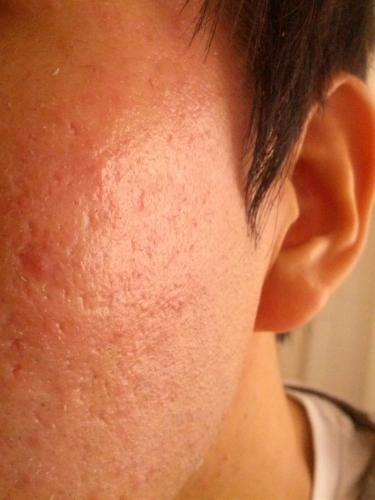 Need Recommendation For Acne Scar Orange Peel Texture