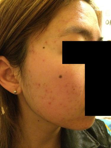 19/f - 20Mg + Pics - First Time On Accutane - Page 2