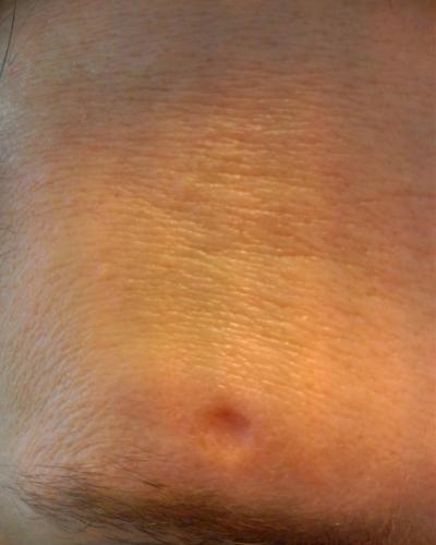 Chicken Pox Scar Above Eyebrow - Scar treatments - Acne ...