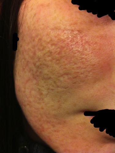 Help It S Time For Treatment Of My Scars After Accutane
