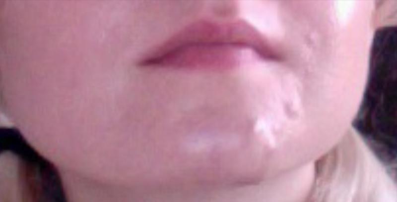 ortho tri cyclen acne