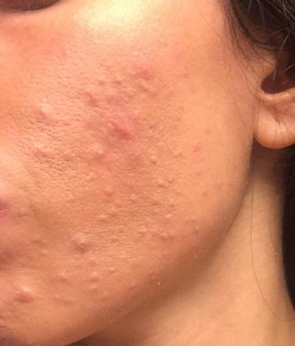 Closed comedones accutane