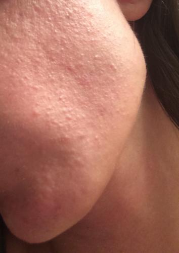 acne adult bump cyst face