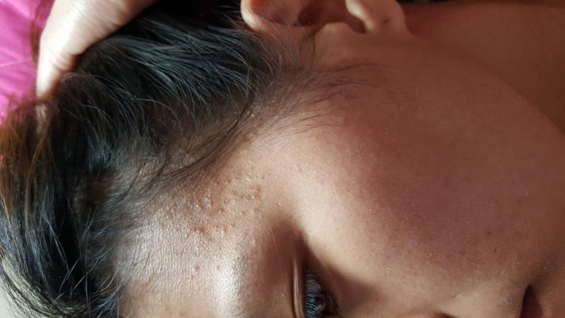 Accutane and adult acne