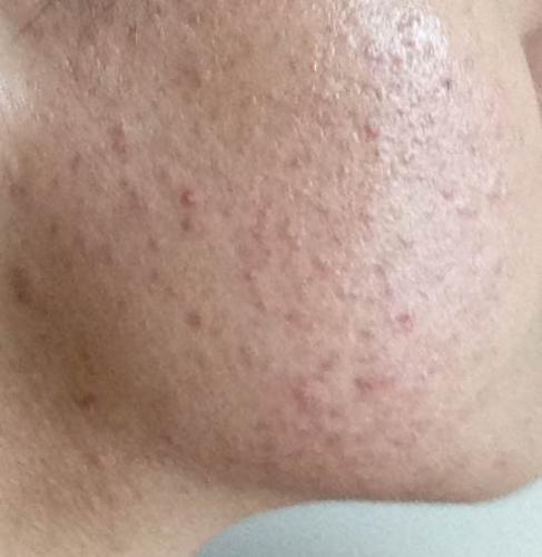Tiny Red Pimples All Over Cheeks Help General Acne