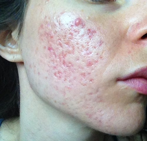 Subcision - Skin Wellness