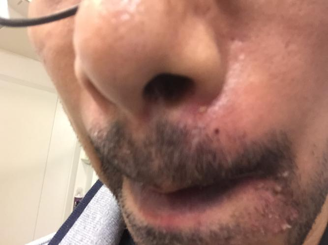 Bump on corner of mouth have hit