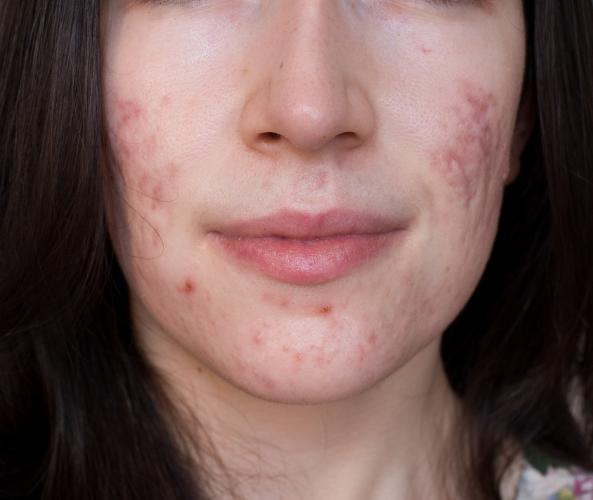 pretty girls with acne scars