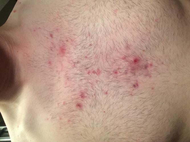 how to get rid of really bad chest acne