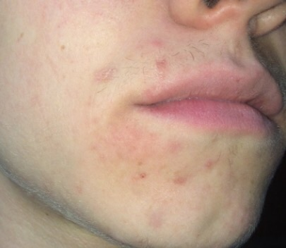 What Is This Thing On My Face? - General acne discussion