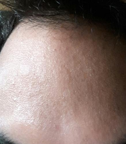 What can i do to get rid of acne