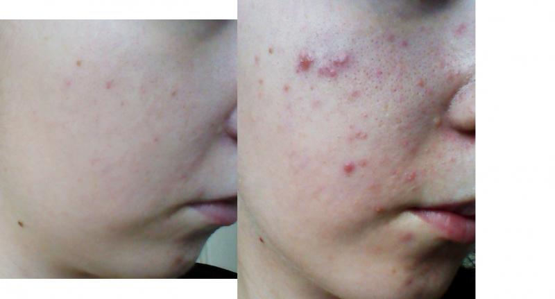acne adult birth control pill