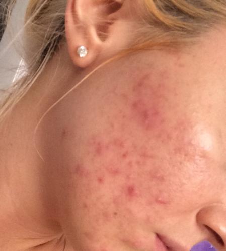 Estrosmart reviews acne